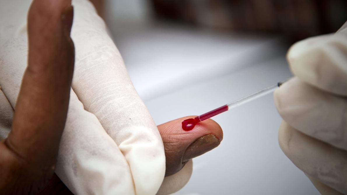 Les décès ont diminué d'un tiers dans le monde depuis 2010 — Sida