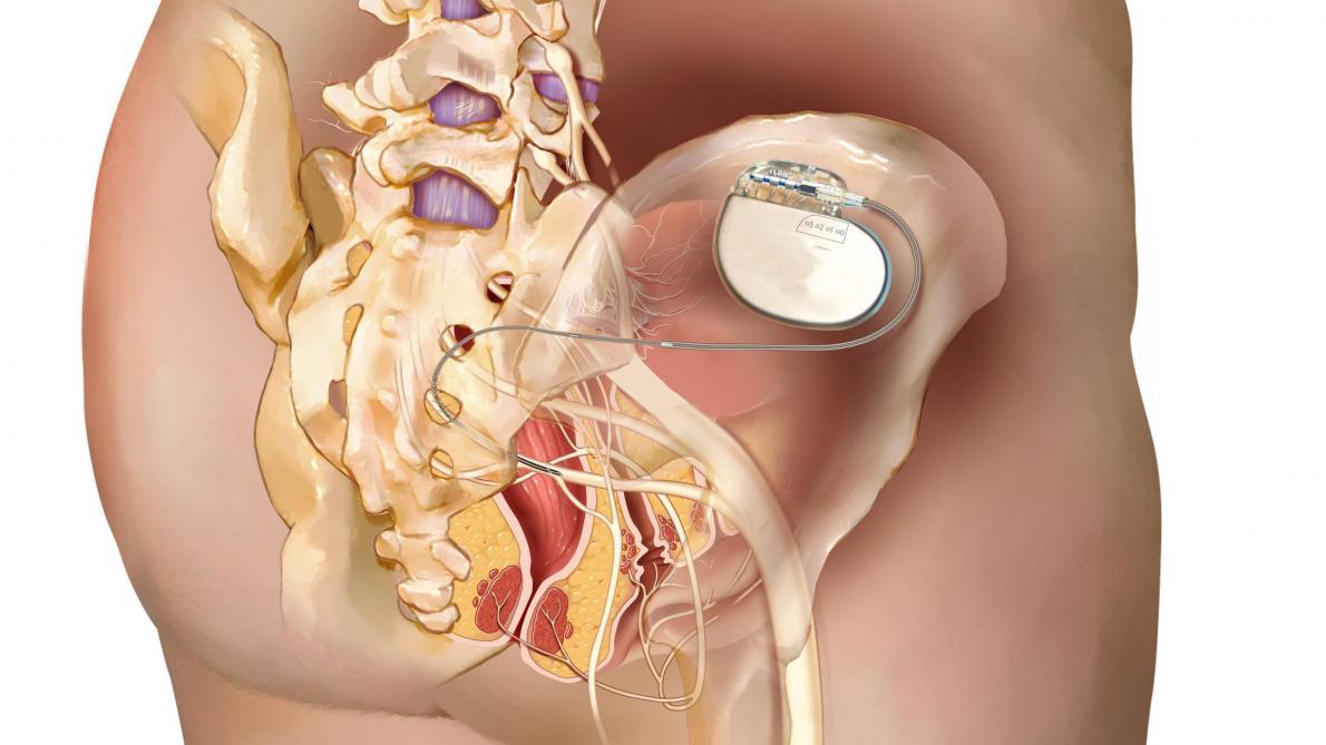 La stimulation électrique, un traitement innovant contre l'incontinence fécale